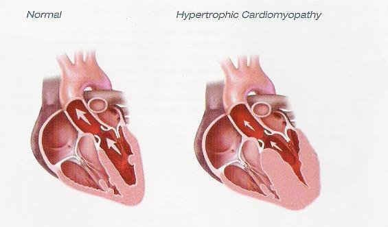 Cardiomyopathy (Heart Muscle Disease) | Waco Cardiology Associates